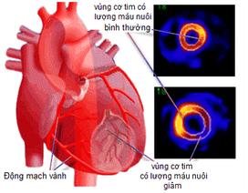 Thiếu máu cơ tim nên ăn gì để giảm đau thắt ngực, tốt cho tim