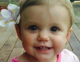 Hậu quả thảm khốc khi con 1 tuổi nuốt pin khiến bố mẹ day dứt cả đời