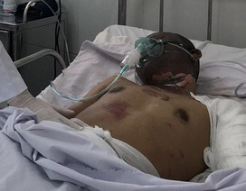 Vụ cháy 19 căn nhà: Tài xế xe bồn bỏng nặng, nguy kịch