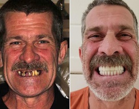 Trộm ID của bệnh nhân mất trí nhớ để... làm răng giả và mua chó