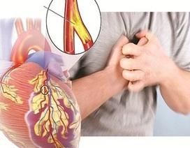 Đặt stent mạch vành  - Những rủi ro người bệnh cần biết