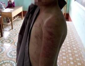 """Cháu bé bị sư thầy bạo hành: Nhà trường, chính quyền đã """"nhắm mắt"""" quá lâu!?"""