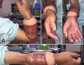 Mục sở thị một ca phẫu thuật nối liền cánh tay bị đứt lìa