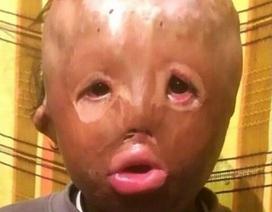 Cậu bé 5 tuổi mất mặt vì hỏa hoạn viết thư xin ông già Noel một khuôn mặt mới
