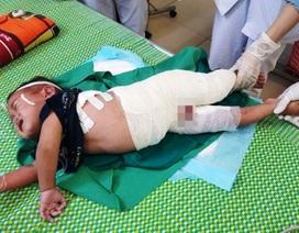 Ngã vào nồi nước luộc măng, cháu bé 2 tuổi bị bỏng nặng