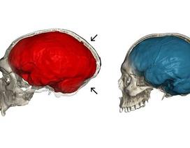 Những người đầu hơi bẹp là do gen di truyền của người Neanderthal