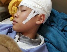 Tạm đình chỉ công tác thầy giáo bị phụ huynh tố tát học sinh gây chấn thương vùng đầu