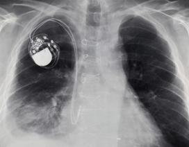 Tin tặc có thể tấn công máy tạo nhịp tim, giết chết bệnh nhân