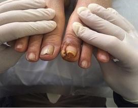 Cứ 30 giây lại có một người bị cắt cụt chân vì đái tháo đường