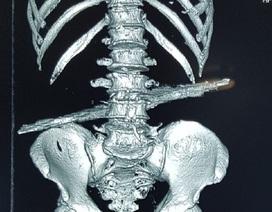 Bác sĩ cưa cây sắt tại hiện trường, cứu cụ ông bị đâm xuyên bụng