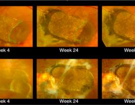 Đột phá: Ghép tế bào gốc vào mắt chữa mù