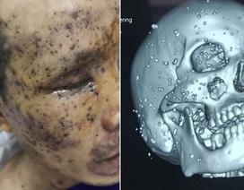 Hy hữu ca tai nạn bị hơn 100 mảnh nhọn găm chi chít trên mặt