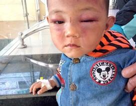Tạm giữ bố dượng nghi đánh bé trai 2 tuổi bầm tím mặt