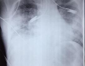 Viêm phổi nguy kịch vì thủy đậu