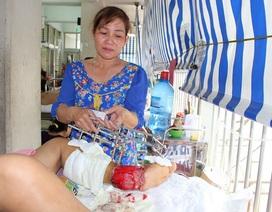 Người mẹ trẻ sắp mất chân trong cảnh gia đình khánh kiệt