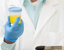 Phát triển phương pháp lưu trữ máu và nước tiểu mà không cần ướp lạnh