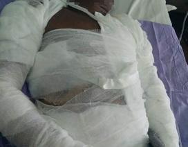 Chồng bỏng nặng vì bị vợ tạt nước sôi