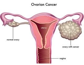 Ung thư buồng trứng: đừng đợi có triệu chứng mới đi khám