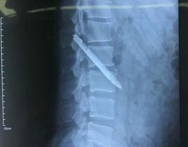 Chiến sỹ công an 11 năm sống chung với lưỡi dao găm nằm gần cột sống