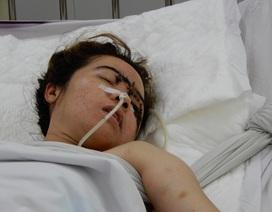 Bị tai nạn giao thông, tính mạng cô công nhân trẻ nguy kịch