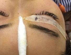 Hoảng hồn cô gái trẻ bị tụt kim trong mắt khi đi nhấn mí