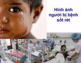 Hơn 10 tỉnh gia tăng người mắc sốt rét, dịch có thể quay trở lại?
