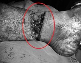 Nam công nhân bị dây cáp cắt gần lìa cẳng chân