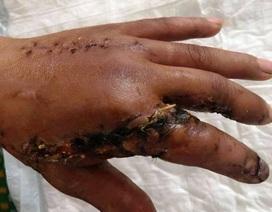 Nối thành công 2 ngón tay bị máy cưa cắt lìa cho bệnh nhân