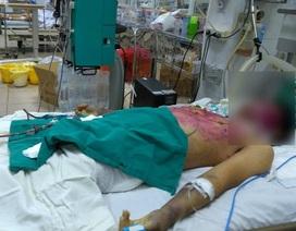 Mẹ bệnh nhân nức nở khóc con khó qua khỏi vì tự ý dùng thuốc chữa thủy đậu