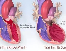 Suy tim - chặng đường cuối nhọc nhằn của các bệnh tim mạch