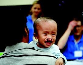 Đăng ký phẫu thuật nụ cười miễn phí cho trẻ hở hàm ếch