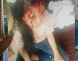 Em gái tố gia đình anh ruột đánh các con mình thương tích
