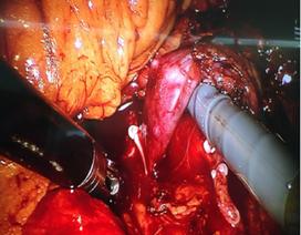 Lần đầu tiên dùng robot phẫu thuật lấy thận ghép