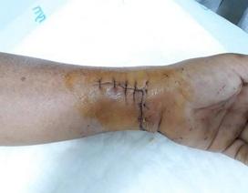 Cứu được bàn tay bệnh nhân bị mảnh kính cứa đứt mạch thần kinh