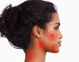 8 loại mụn trên da chớ có nặn