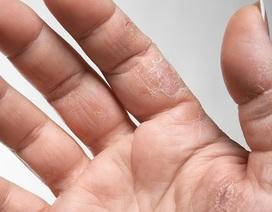 10 kiểu ngứa da càng gãi càng nguy hiểm