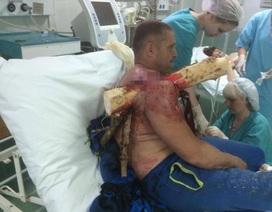 Thử thiết bị bay tự chế, người đàn ông bị thân cây đâm xuyên người
