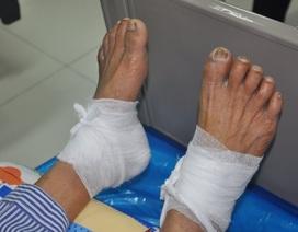 Chườm lá ngải cứu rang nóng, bệnh nhân bị bỏng nặng
