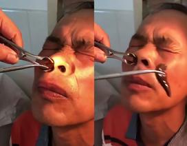 Kinh dị đỉa no máu sống suốt hai tuần trong lỗ mũi
