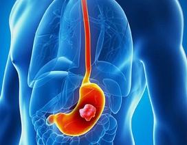 """Ung thư dạ dày: đừng để bị """"đánh lừa"""" bởi các triệu chứng viêm dạ dày thông thường"""