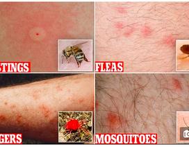 Cách phân biệt các loại vết đốt của côn trùng