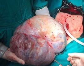Khối u khổng lồ nặng hơn 6kg trong ổ bụng người phụ nữ
