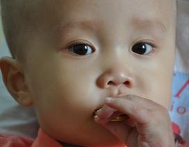 Sự sống mong manh bé 13 tháng tuổi dân tộc Tày bị u não