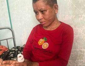 """Chủ tịch tỉnh Gia Lai chỉ đạo """"hỏa tốc"""" điều tra vụ một phụ nữ bị tra tấn man rợ"""