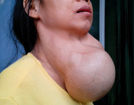 Thiếu i ốt tái diễn, bệnh tuyến giáp gia tăng