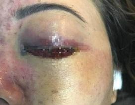 'Sờ gáy' spa làm mù mắt cô gái sau tiêm filler nâng mũi