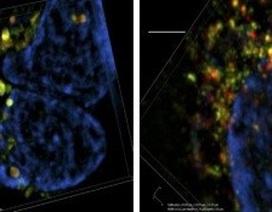 Các nhà khoa học phát hiện ra mục tiêu mới để ngăn chặn sự phát triển của ung thư