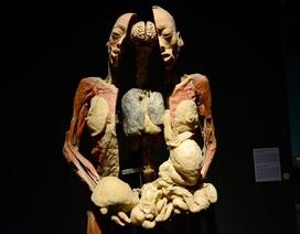Những hình ảnh ám ảnh trong triển lãm nội tạng, cơ thể người ở TPHCM