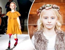 Người mẫu nhí khiếm khuyết cơ thể tự tin sải bước trên sàn catwalk