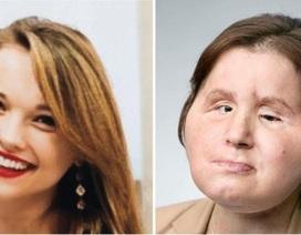 Hy hữu ca cấy ghép khuôn mặt từ người thân kéo dài 31 tiếng đồng hồ